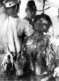foto: victima de la bomba atómica de Nagasaki